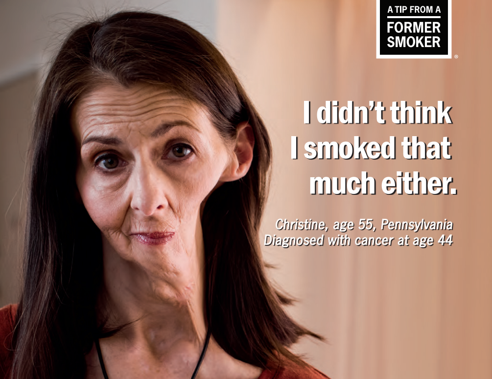 Christine smoked, but she exercised and ate healthy foods and never thought her smoking would hurt her. Christine reveals that she lost her teeth and half of her jaw due to cancer.